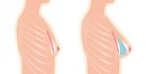 La prothèse reste mobile avec le sein. Il s'agit de la position la plus naturelle et la plus physiologique. Il est recommandé chez les patientes à l'étoffe mammaire et graisse sous cutanée en quantité suffisante pour que la prothèse soit intégralement dissimulée. L'implant et le sein évoluent comme un seul. L'implant garde toute sa souplesse et reste mobile avec le sein.