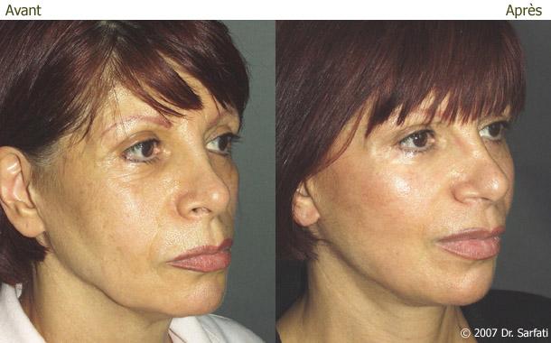 Résultat d'une patiente à 9 mois d'un lifting cervico-facial et réinjection de graisse